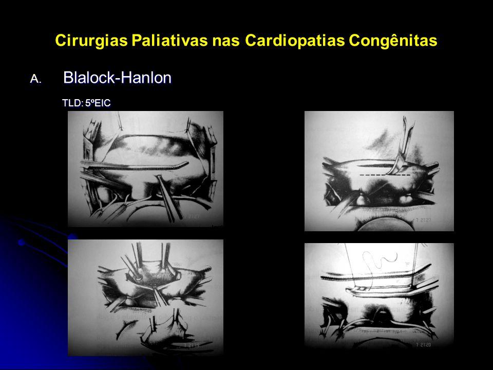 Cirurgias Paliativas nas Cardiopatias Congênitas A. Blalock-Hanlon TLD: 5ºEIC TLD: 5ºEIC