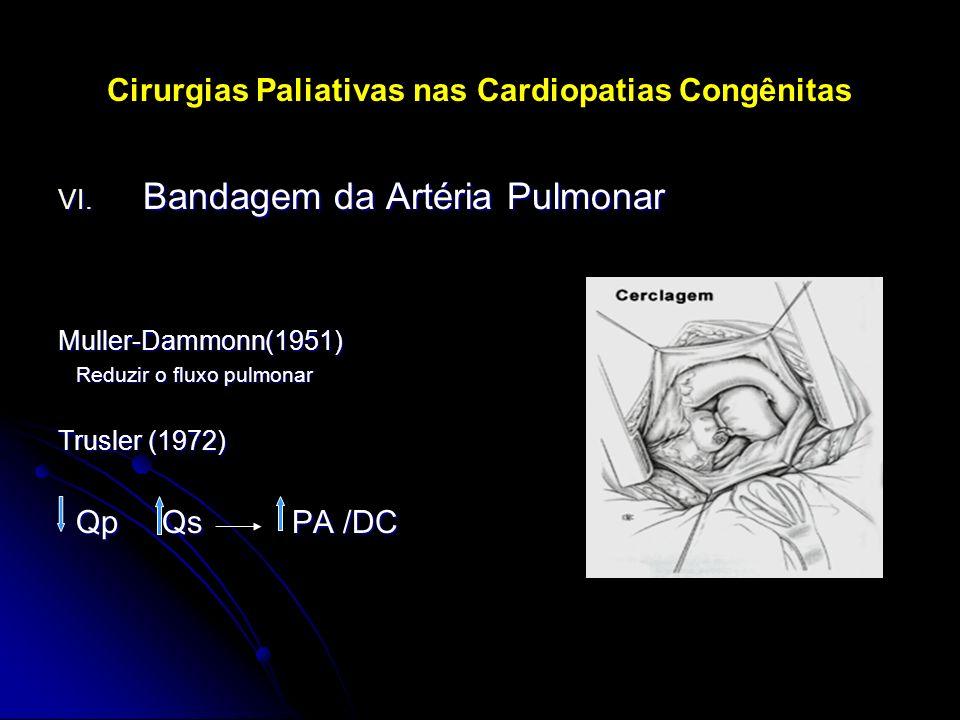 Cirurgias Paliativas nas Cardiopatias Congênitas VI. Bandagem da Artéria Pulmonar Muller-Dammonn(1951) Reduzir o fluxo pulmonar Reduzir o fluxo pulmon