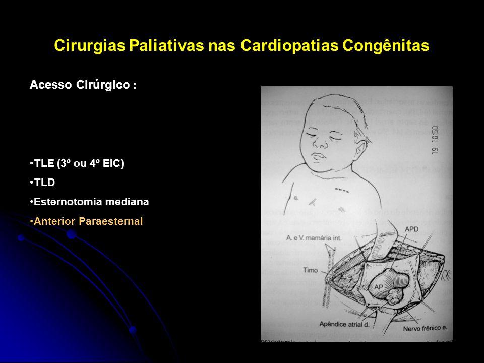 Cirurgias Paliativas nas Cardiopatias Congênitas Acesso Cirúrgico : TLE (3º ou 4º EIC) TLD Esternotomia mediana Anterior Paraesternal