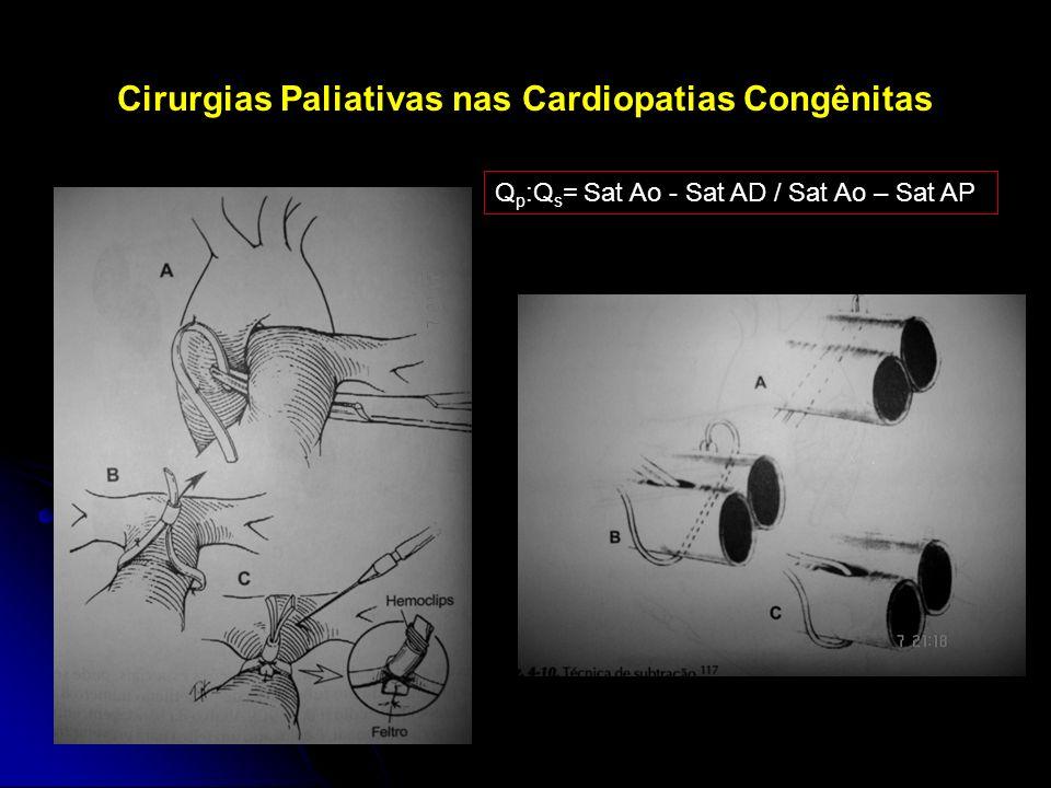 Cirurgias Paliativas nas Cardiopatias Congênitas Q p :Q s = Sat Ao - Sat AD / Sat Ao – Sat AP
