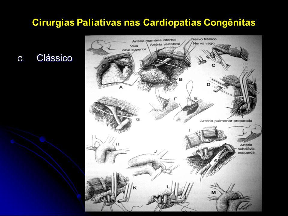 Cirurgias Paliativas nas Cardiopatias Congênitas C. Clássico