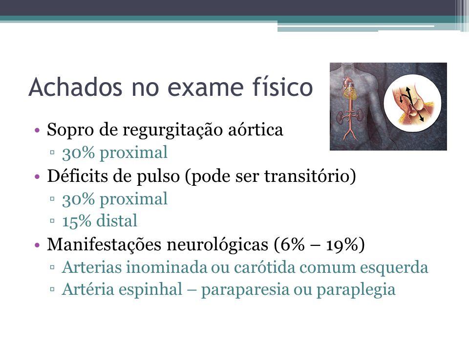 Achados no exame físico Sopro de regurgitação aórtica 30% proximal Déficits de pulso (pode ser transitório) 30% proximal 15% distal Manifestações neur