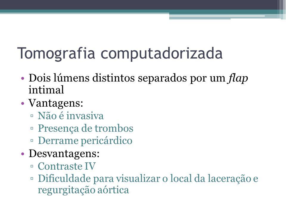 Tomografia computadorizada Dois lúmens distintos separados por um flap intimal Vantagens: Não é invasiva Presença de trombos Derrame pericárdico Desva