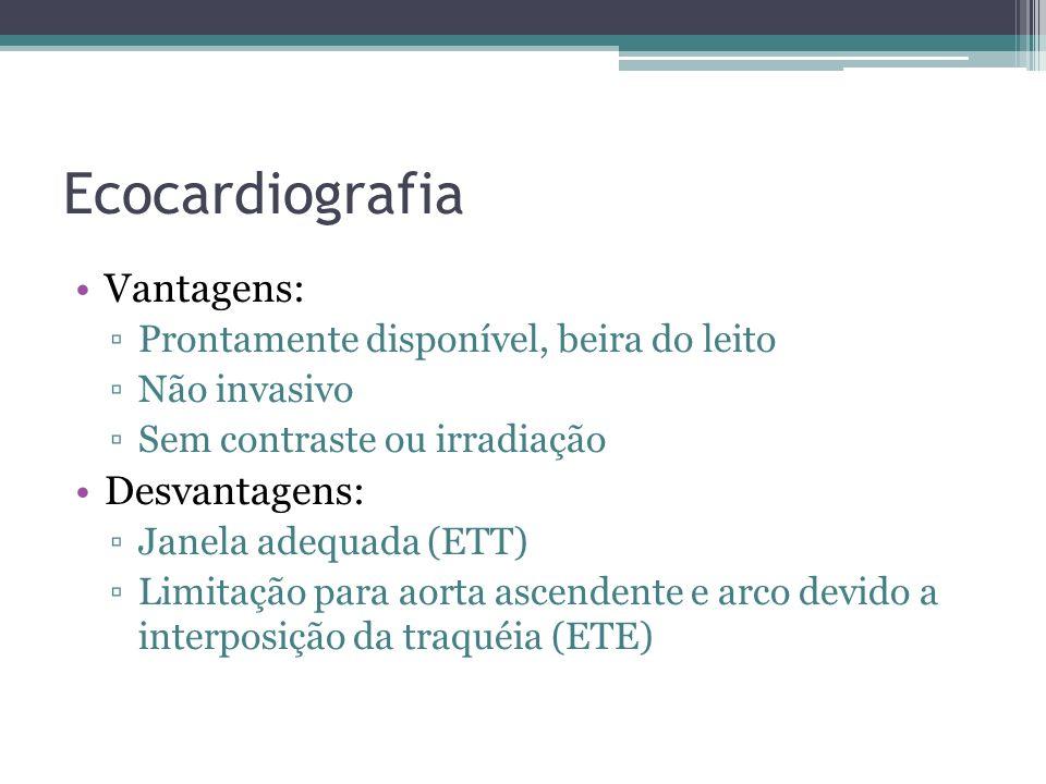 Ecocardiografia Vantagens: Prontamente disponível, beira do leito Não invasivo Sem contraste ou irradiação Desvantagens: Janela adequada (ETT) Limitaç