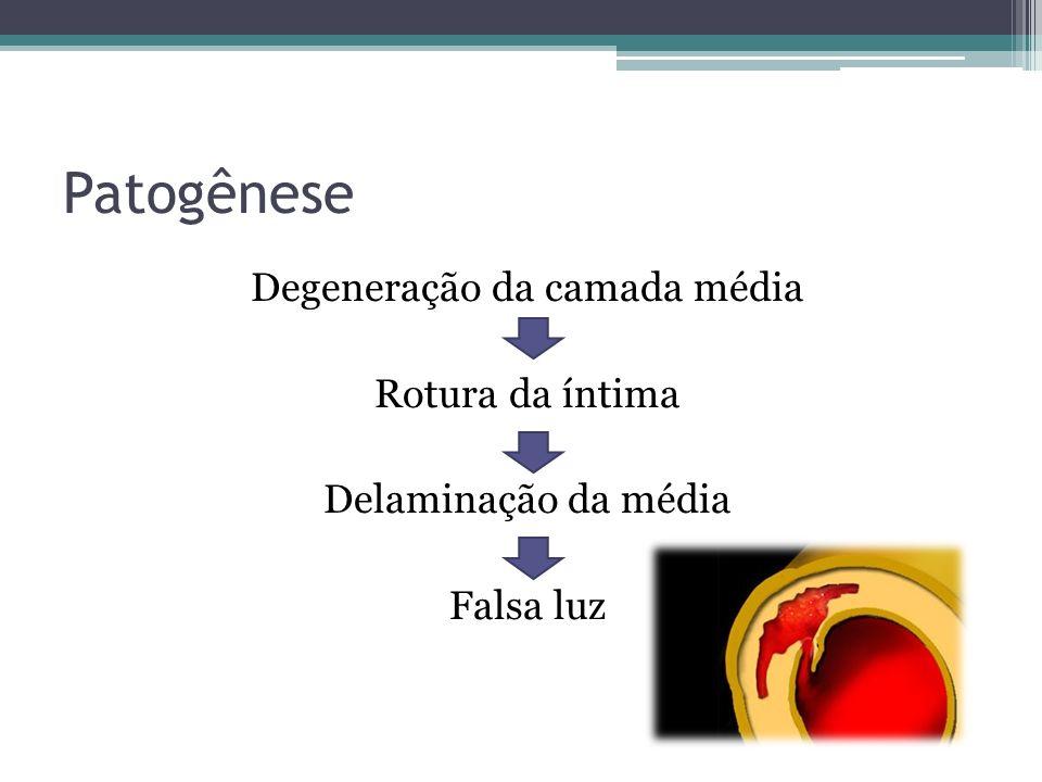 Patogênese Degeneração da camada média Rotura da íntima Delaminação da média Falsa luz