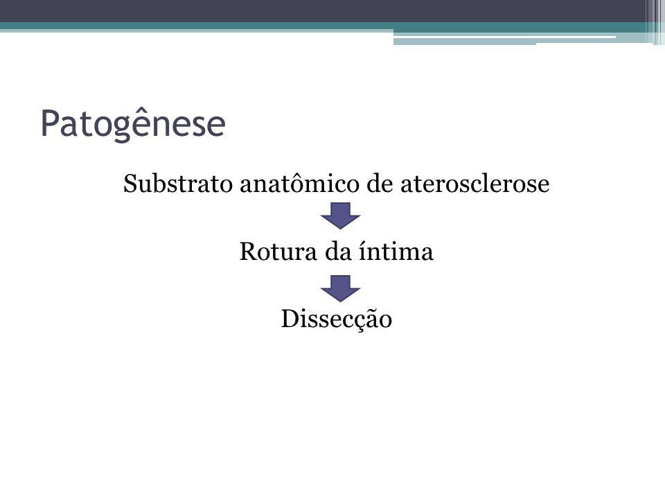Patogênese Substrato anatômico de aterosclerose Rotura da íntima Dissecção