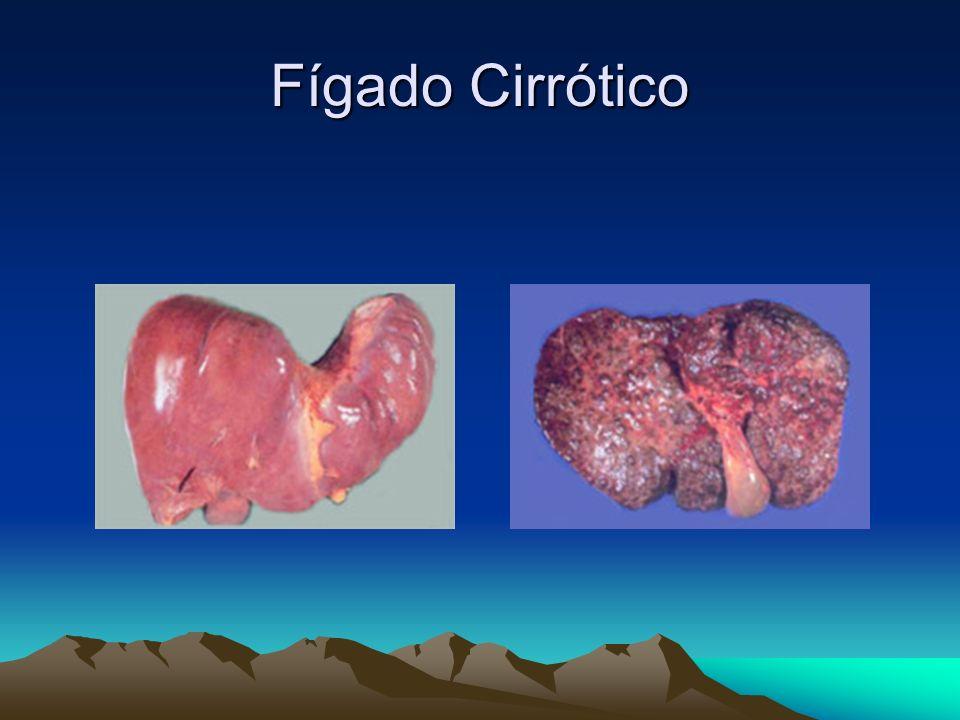 Fígado Cirrótico