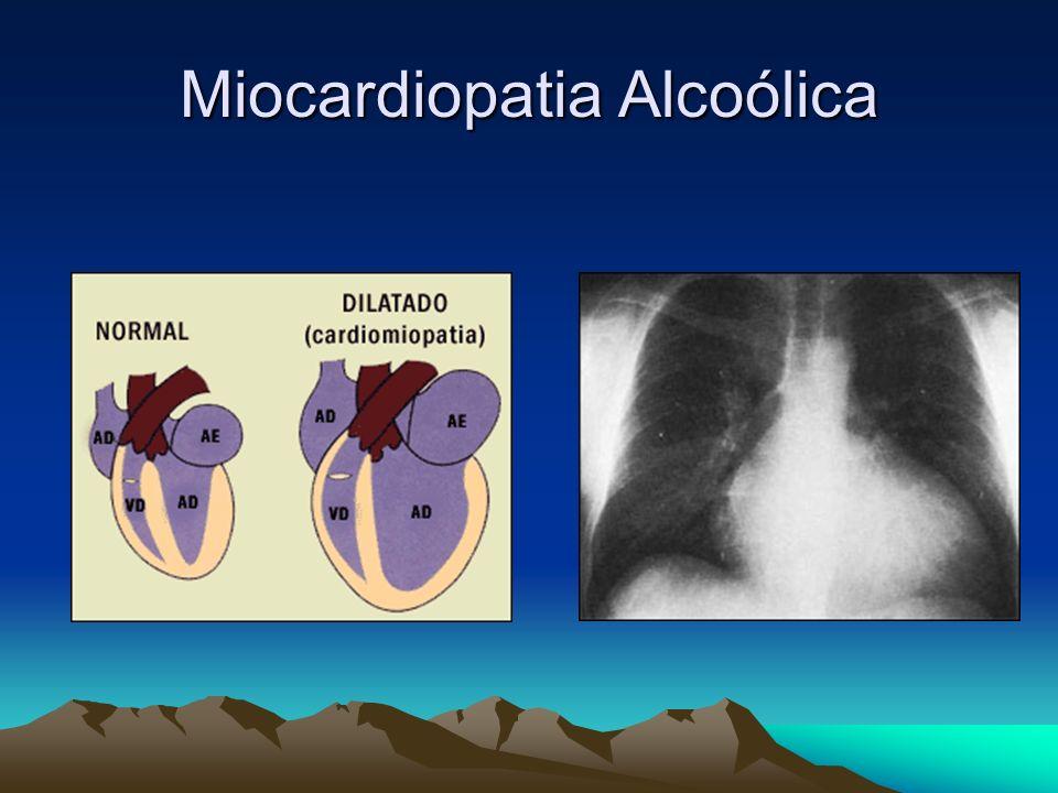 Miocardiopatia Alcoólica