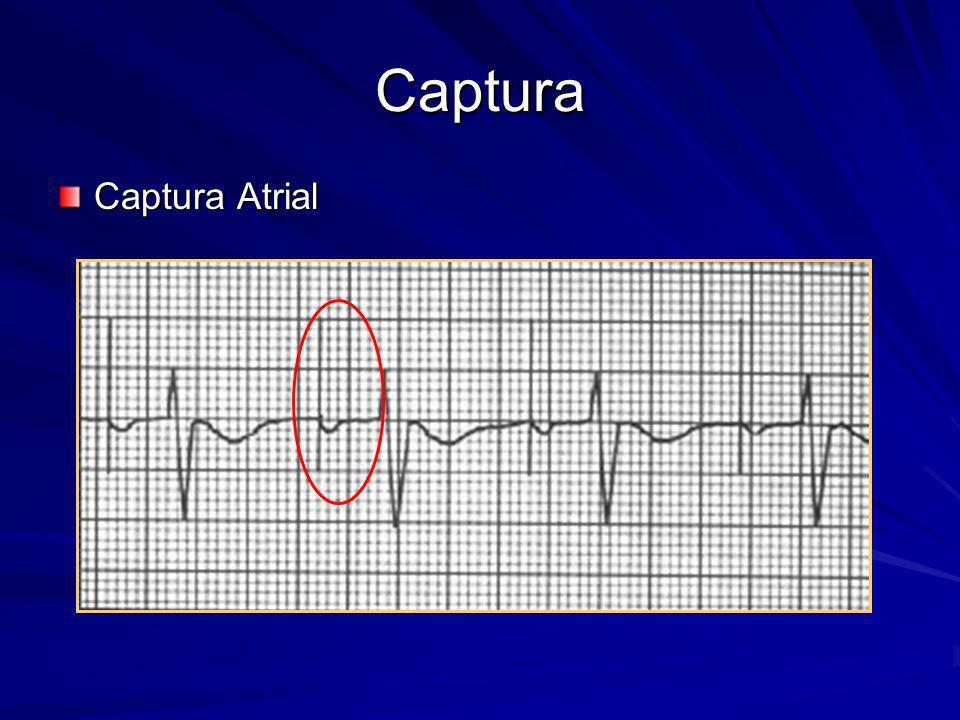 Captura Definição: Definição: –Despolarização cardíaca que resulta em contração efetiva (atrial ou ventricular); –Causada pelo estímulo do marcapasso; –Captura um a um: quando cada estímulo do marcapasso causa uma despolarização que resulta em contração cardíaca