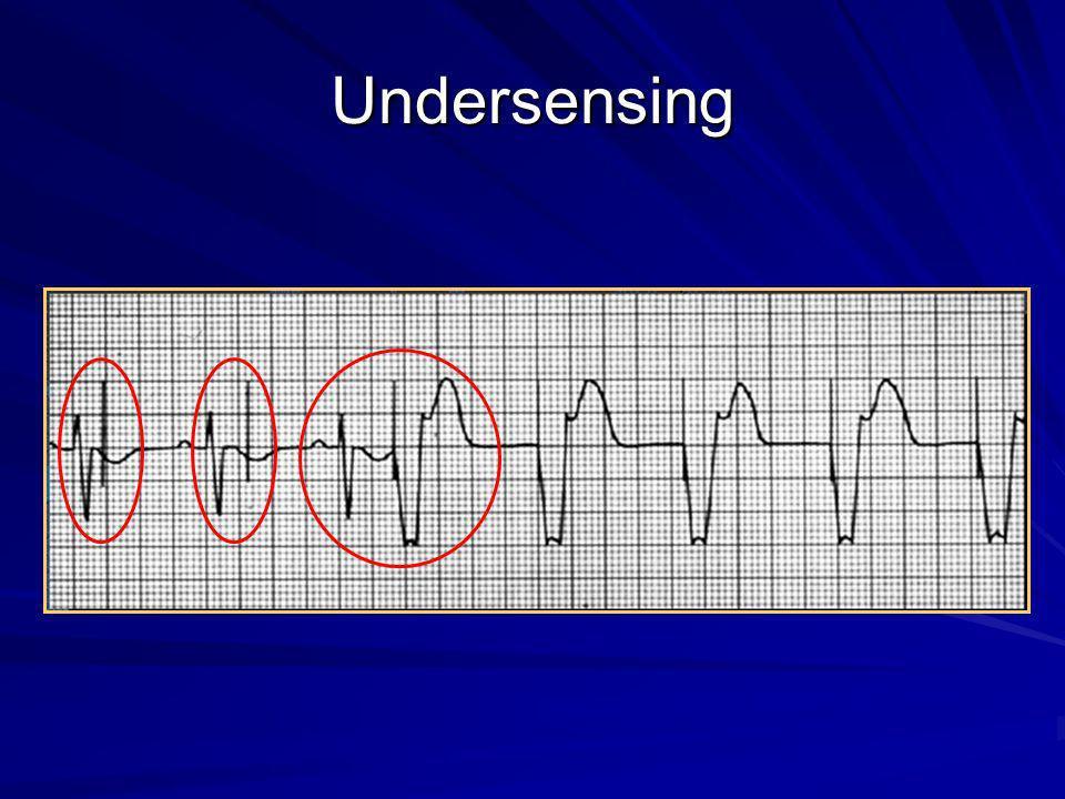 Undersensing Definição: falha do circuito do marcapasso em sentir uma onda P ou R intrínseca.
