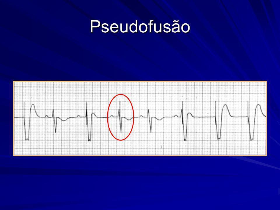 Pseudofusão Definição: o pulso de estimulação cai em um batimento intrínseco.
