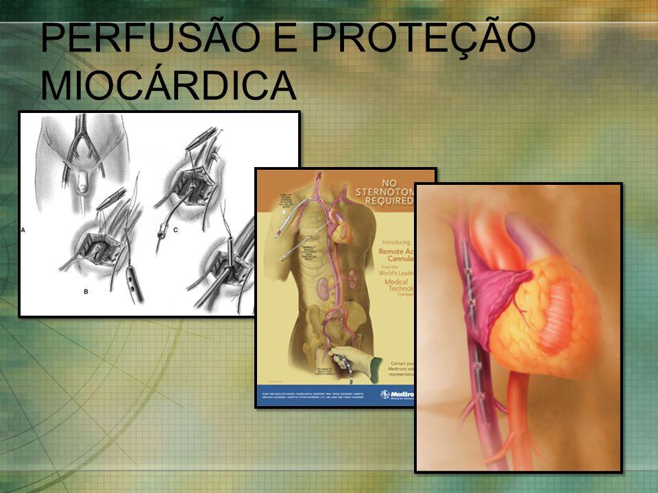 PERFUSÃO E PROTEÇÃO MIOCÁRDICA