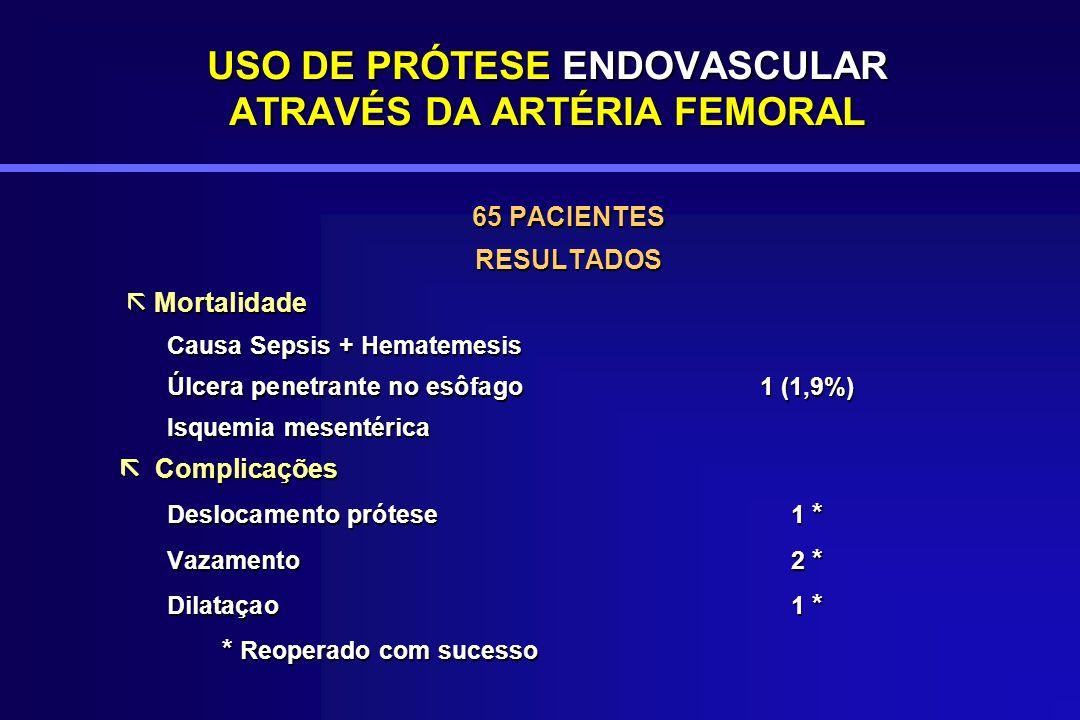 USO DE PRÓTESE ENDOVASCULAR ATRAVÉS DA ARTÉRIA FEMORAL 65 PACIENTES RESULTADOS Mortalidade Mortalidade Causa Sepsis + Hematemesis Úlcera penetrante no