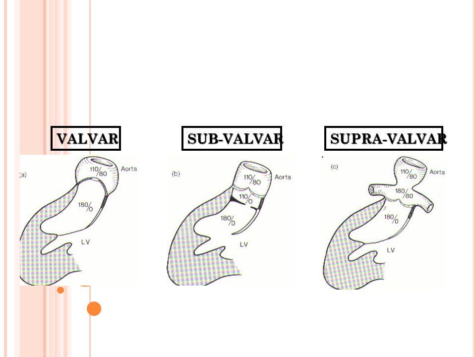 ESTENOSE AÓRTICA DEFINIÇÃO Condição em que, pela restrição à abertura dos folhetos valvares, há uma redução da área valvar, levando a formação de um gradiente de pressão sistólico entre o VE e aorta.