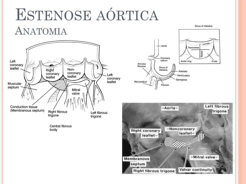 E STENOSE AÓRTICA E XAMES C OMPLEMENTARES RX de tórax Cardiopatia dilatada Calcificação da valva aórtica (anel)