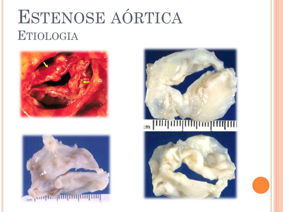 E STENOSE AÓRTICA H ISTÓRIA N ATURAL Fase assintomática Óbito por morte súbita - < 1% Taxa de mortalidade média de cx valvular aórtica (3- 5%) Fase assintomática – sintomática (E Ao grave): 40% após 2 anos 80% após 3 anos Risco aumentado de morte súbita: Hipotensão desencadeada na ergometria Disfunção sistólica do VE HVE excessiva (septo > 15) Área valvar < 0,6 cm2