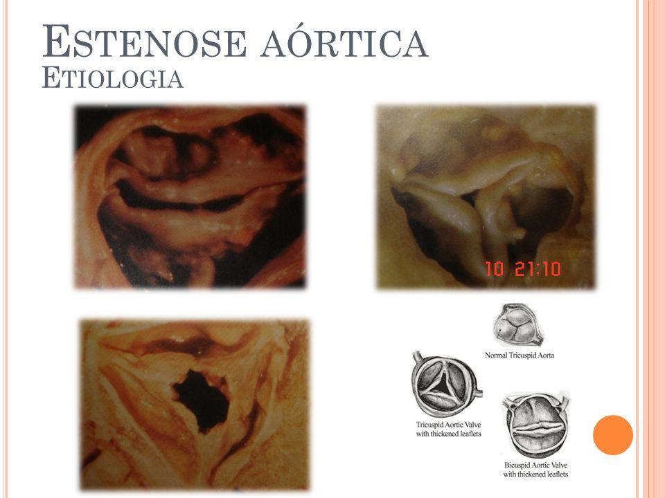ESTENOSE AÓRTICA COMPLICAÇÕES INTRA- OPERATÓRIAS Descontinuidade entre aorta e ventrículo esquerdo Embolia por cálcio Dano neurológico Embolia coronária Oclusão coronariana Má posicionamento da prótese Bloqueio atrioventricular Junto ao septo interventricular