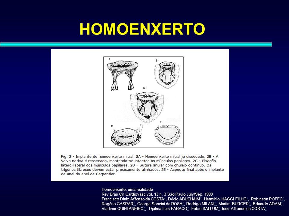 HOMOENXERTO Homoenxerto: uma realidade Rev Bras Cir Cardiovasc vol. 13 n. 3 São Paulo July/Sep. 1998 Francisco Diniz Affonso da COSTA*, Décio ABUCHAIM