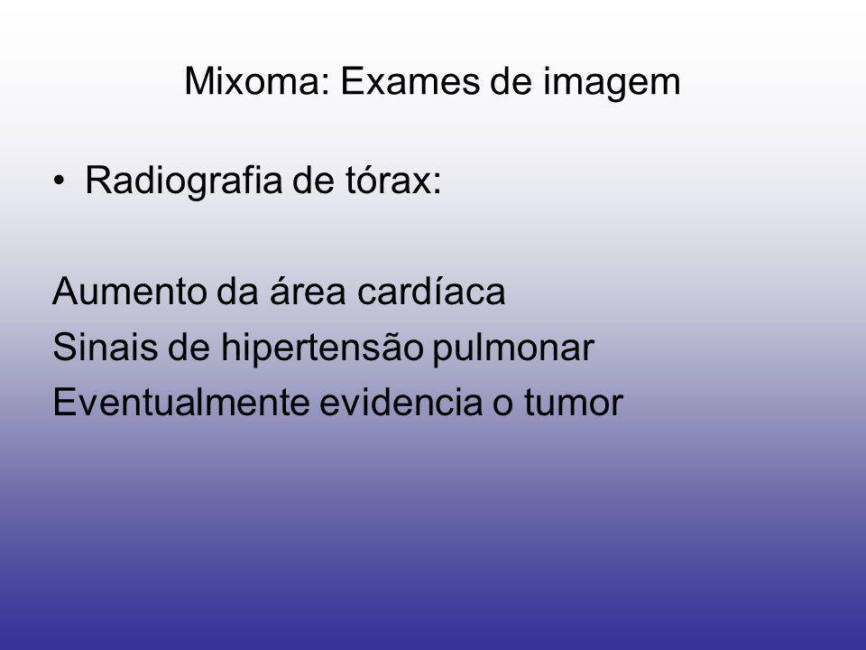 Mixoma: Exames de imagem Radiografia de tórax: Aumento da área cardíaca Sinais de hipertensão pulmonar Eventualmente evidencia o tumor