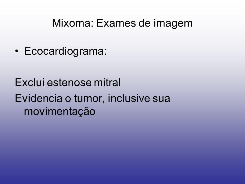 Ecocardiograma: Exclui estenose mitral Evidencia o tumor, inclusive sua movimentação