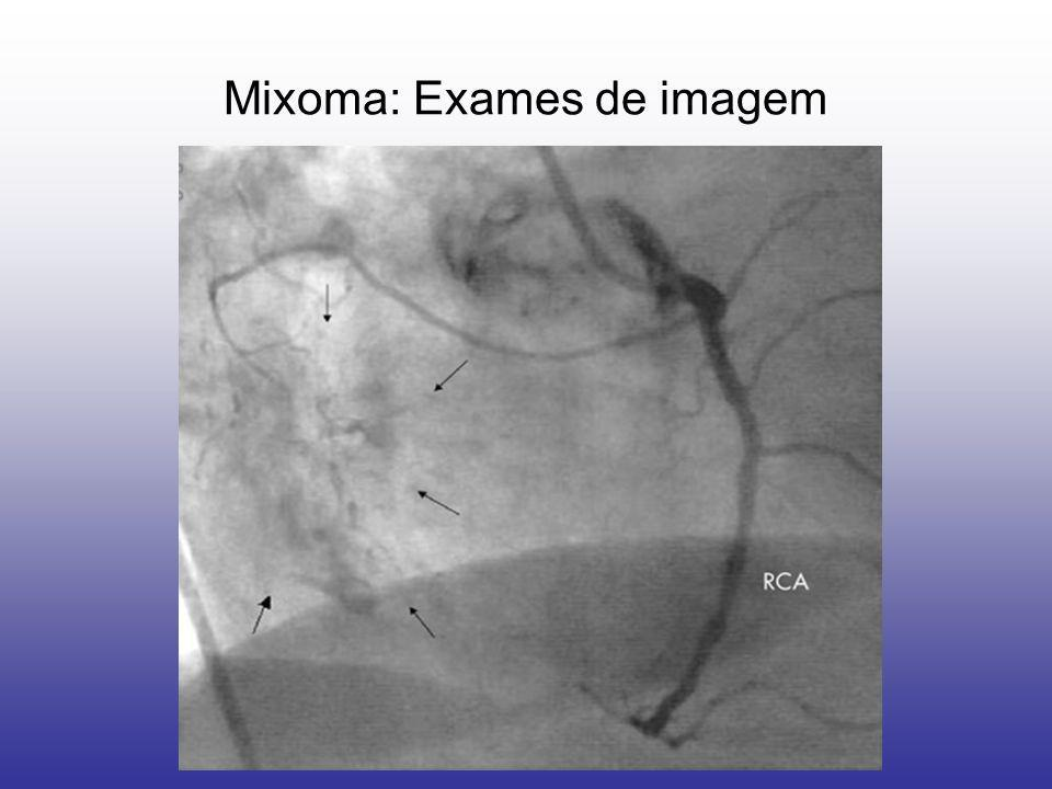 Mixoma: Exames de imagem