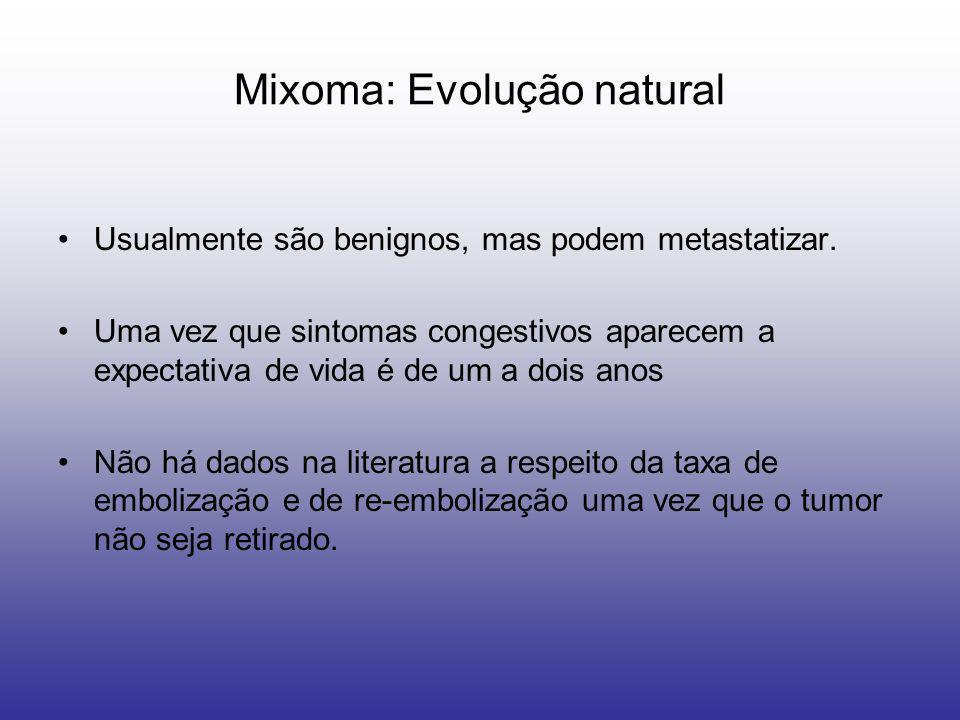 Mixoma: Evolução natural Usualmente são benignos, mas podem metastatizar. Uma vez que sintomas congestivos aparecem a expectativa de vida é de um a do