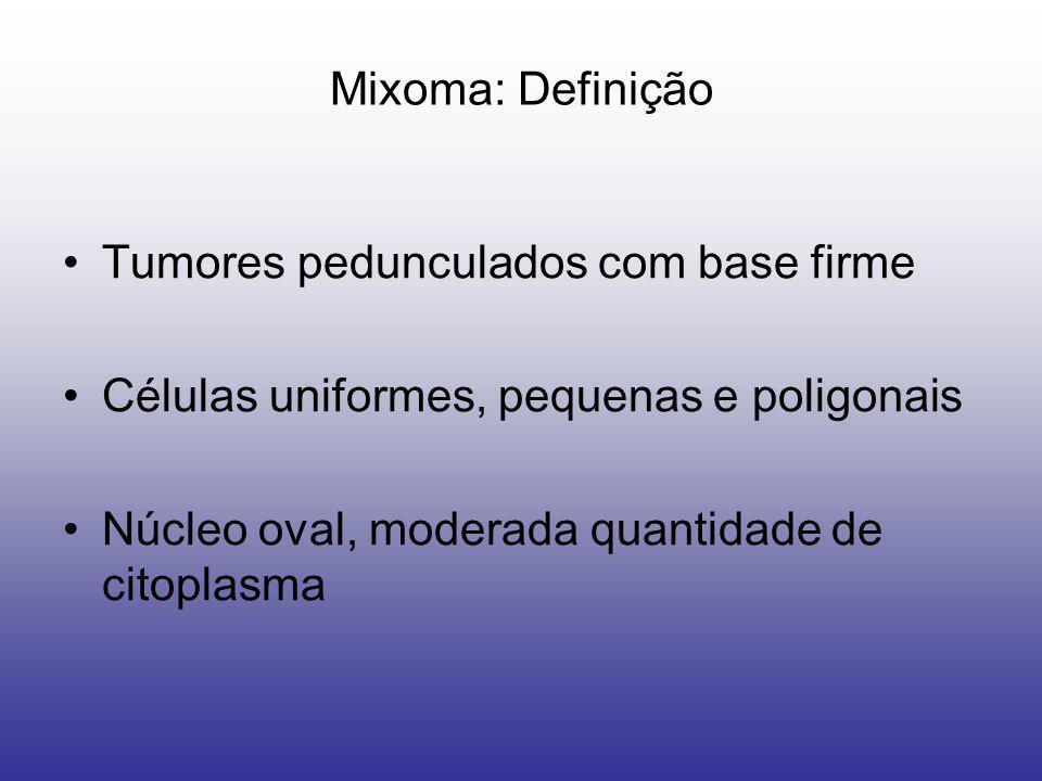 Mixoma: Definição Tumores pedunculados com base firme Células uniformes, pequenas e poligonais Núcleo oval, moderada quantidade de citoplasma