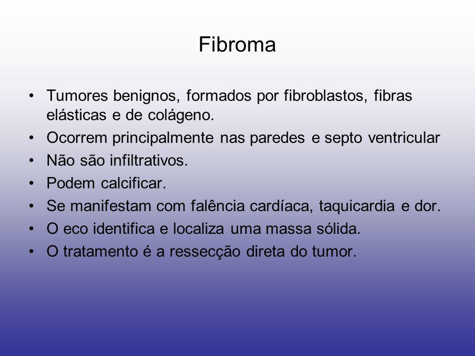 Fibroma Tumores benignos, formados por fibroblastos, fibras elásticas e de colágeno. Ocorrem principalmente nas paredes e septo ventricular Não são in