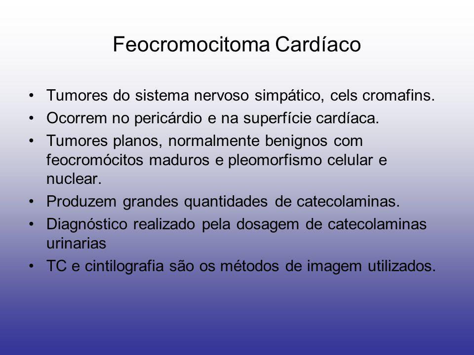 Feocromocitoma Cardíaco Tumores do sistema nervoso simpático, cels cromafins. Ocorrem no pericárdio e na superfície cardíaca. Tumores planos, normalme