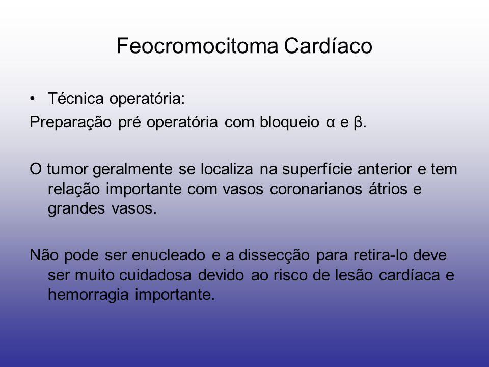 Feocromocitoma Cardíaco Técnica operatória: Preparação pré operatória com bloqueio α e β. O tumor geralmente se localiza na superfície anterior e tem