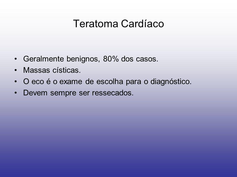 Teratoma Cardíaco Geralmente benignos, 80% dos casos. Massas císticas. O eco é o exame de escolha para o diagnóstico. Devem sempre ser ressecados.