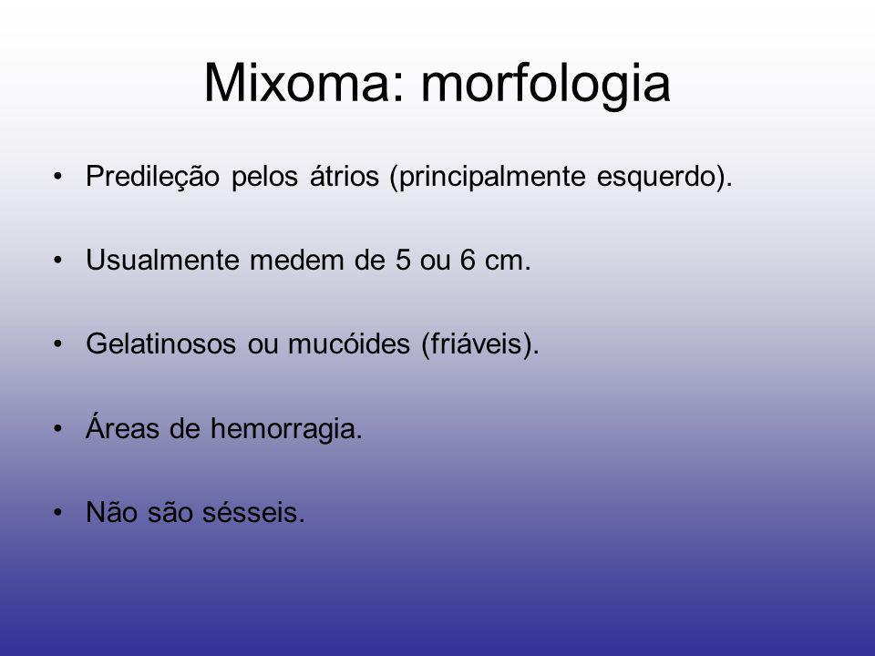 Mixoma: morfologia Predileção pelos átrios (principalmente esquerdo). Usualmente medem de 5 ou 6 cm. Gelatinosos ou mucóides (friáveis). Áreas de hemo
