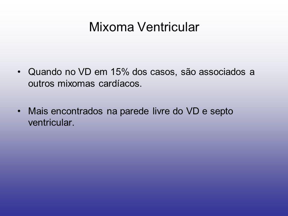 Mixoma Ventricular Quando no VD em 15% dos casos, são associados a outros mixomas cardíacos. Mais encontrados na parede livre do VD e septo ventricula