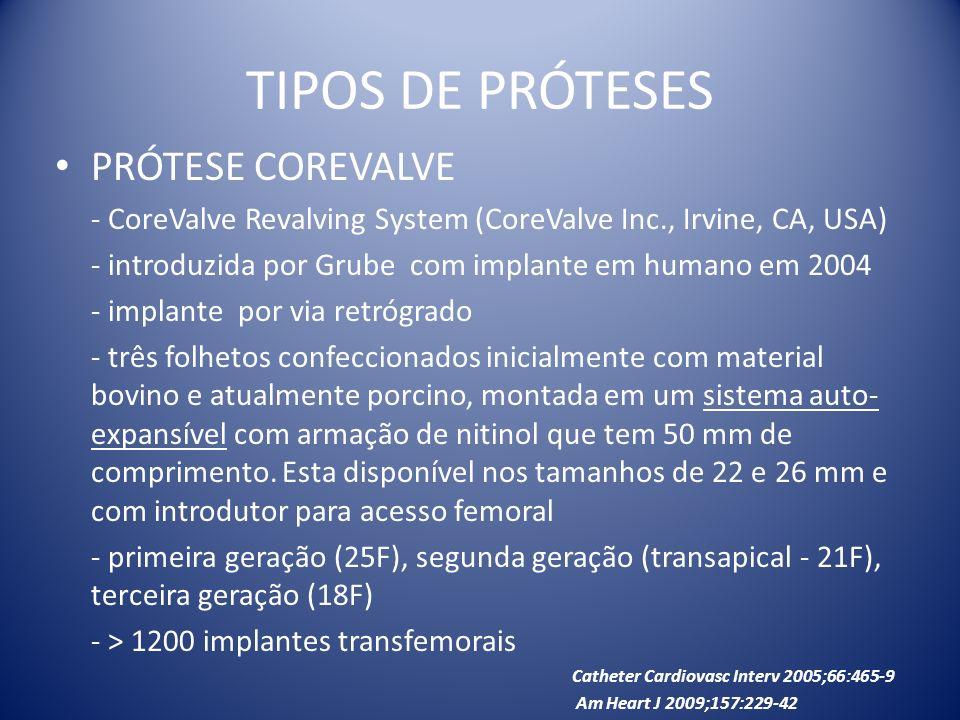 TIPOS DE PRÓTESES PRÓTESE COREVALVE - CoreValve Revalving System (CoreValve Inc., Irvine, CA, USA) - introduzida por Grube com implante em humano em 2