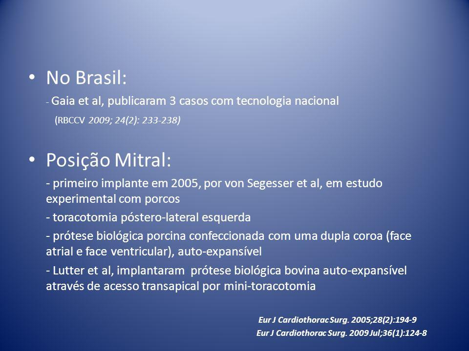 No Brasil: - Gaia et al, publicaram 3 casos com tecnologia nacional (RBCCV 2009; 24(2): 233-238) Posição Mitral: - primeiro implante em 2005, por von