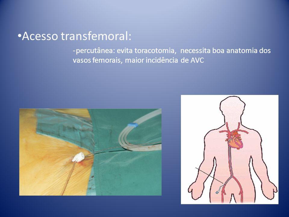 Acesso transfemoral: -percutânea: evita toracotomia, necessita boa anatomia dos vasos femorais, maior incidência de AVC