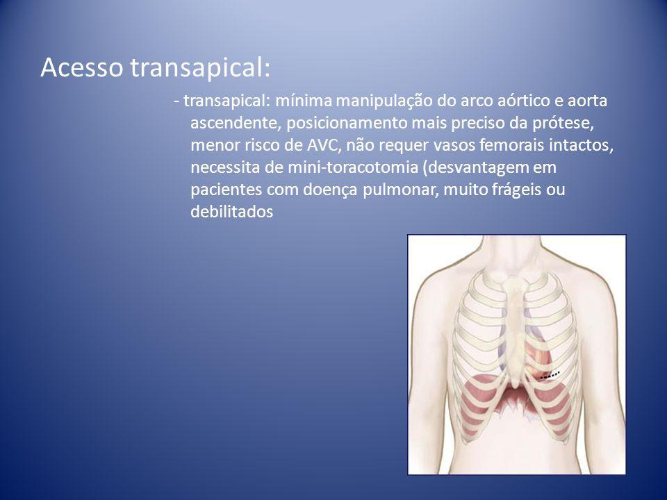 Acesso transapical: - transapical: mínima manipulação do arco aórtico e aorta ascendente, posicionamento mais preciso da prótese, menor risco de AVC,