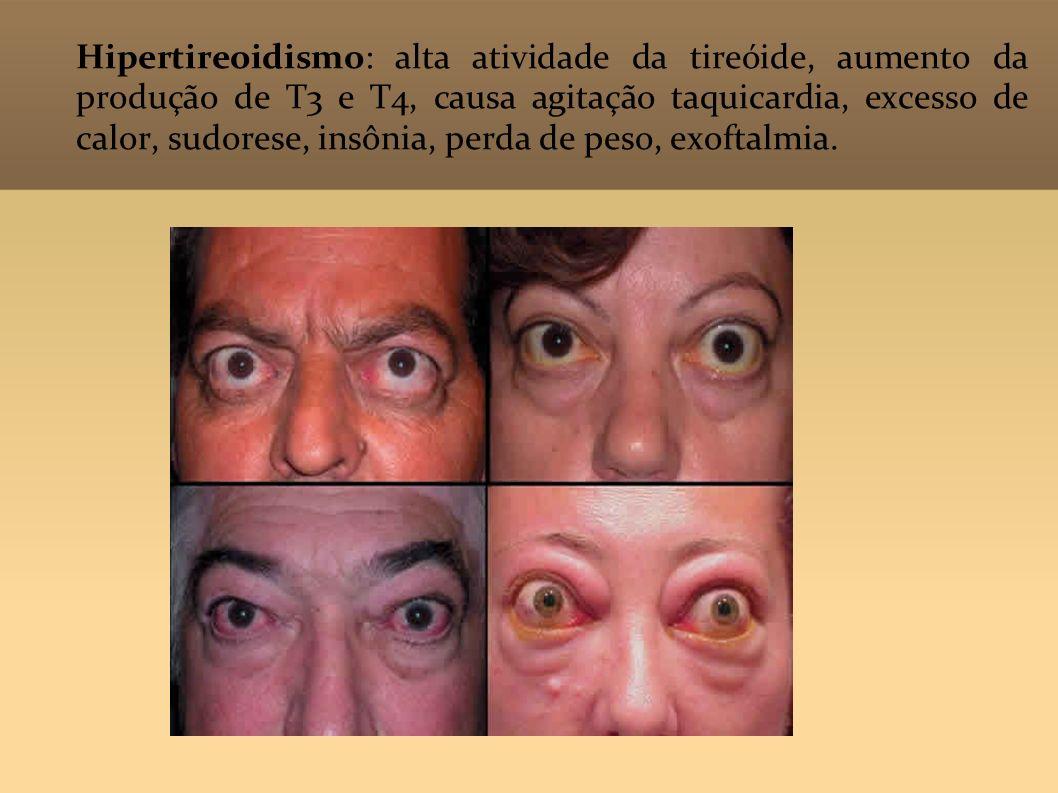 Hipertireoidismo: alta atividade da tireóide, aumento da produção de T3 e T4, causa agitação taquicardia, excesso de calor, sudorese, insônia, perda d