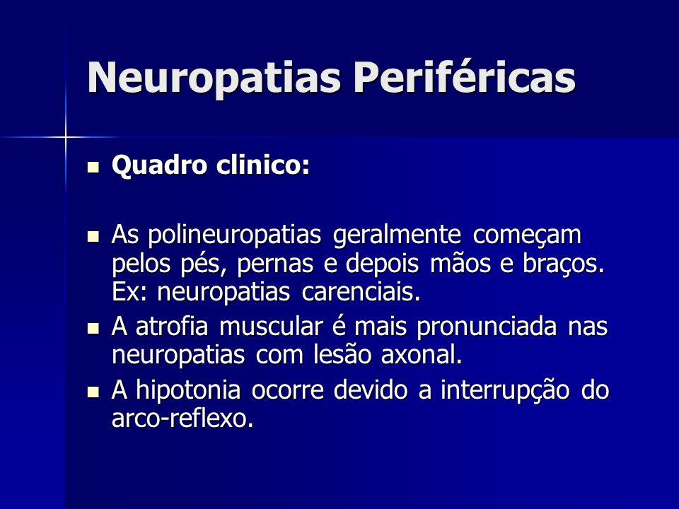 Neuropatias Periféricas Quadro clinico: Quadro clinico: As polineuropatias geralmente começam pelos pés, pernas e depois mãos e braços. Ex: neuropatia