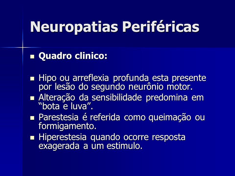 Neuropatias Periféricas Quadro clinico: Quadro clinico: Hipo ou arreflexia profunda esta presente por lesão do segundo neurônio motor. Hipo ou arrefle