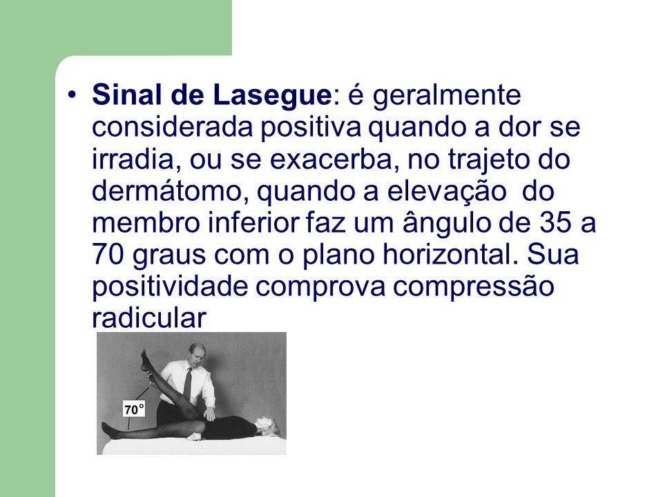 Sinal de Lasegue: é geralmente considerada positiva quando a dor se irradia, ou se exacerba, no trajeto do dermátomo, quando a elevação do membro infe