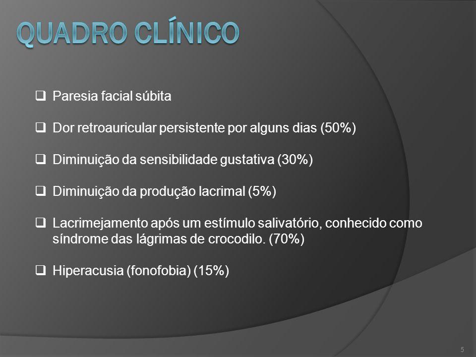 5 Paresia facial súbita Dor retroauricular persistente por alguns dias (50%) Diminuição da sensibilidade gustativa (30%) Diminuição da produção lacrim