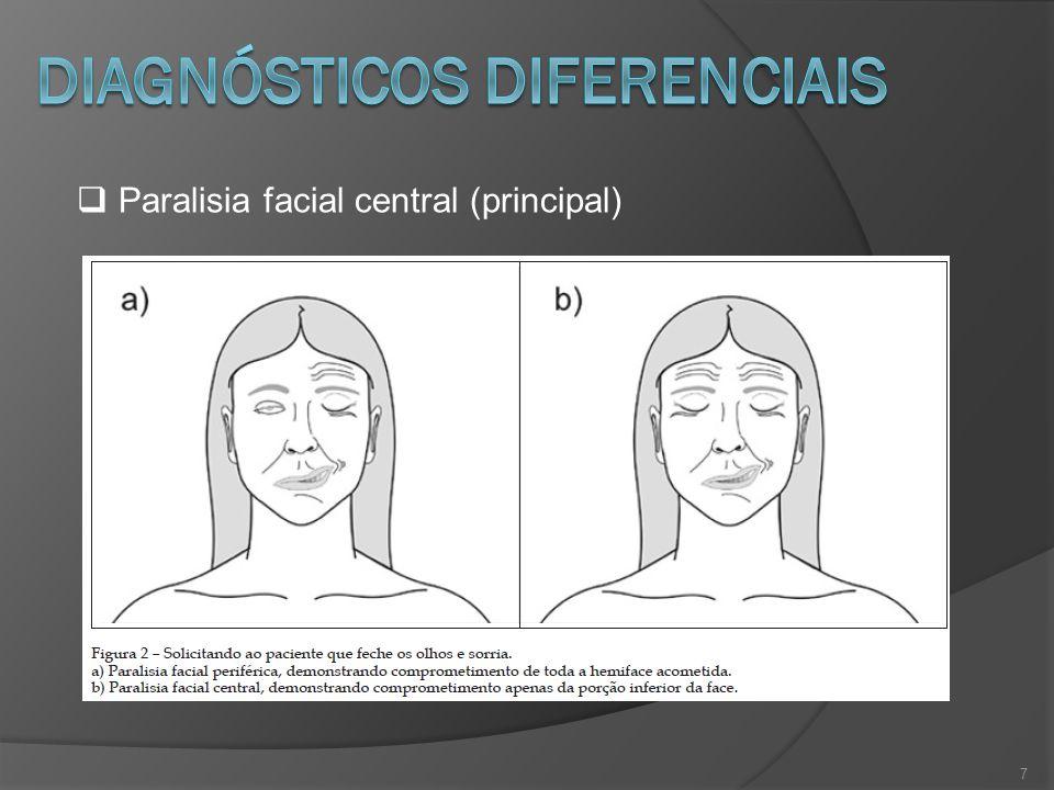 7 Paralisia facial central (principal)