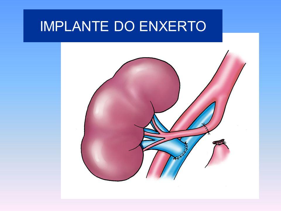 IMPLANTE DO ENXERTO