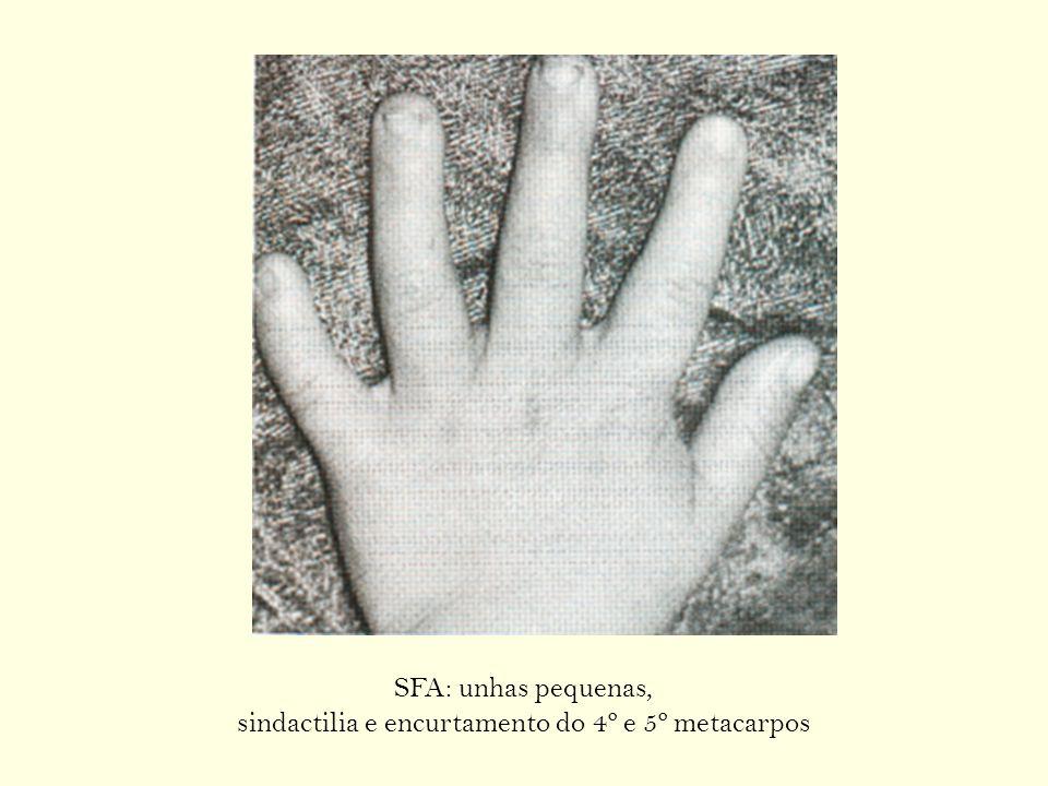 SFA: unhas pequenas, sindactilia e encurtamento do 4º e 5º metacarpos