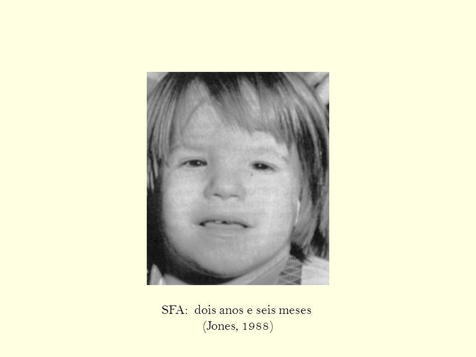 SFA: dois anos e seis meses (Jones, 1988)
