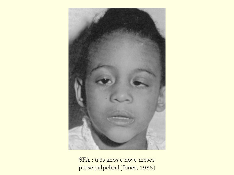 SFA : três anos e nove meses ptose palpebral (Jones, 1988)