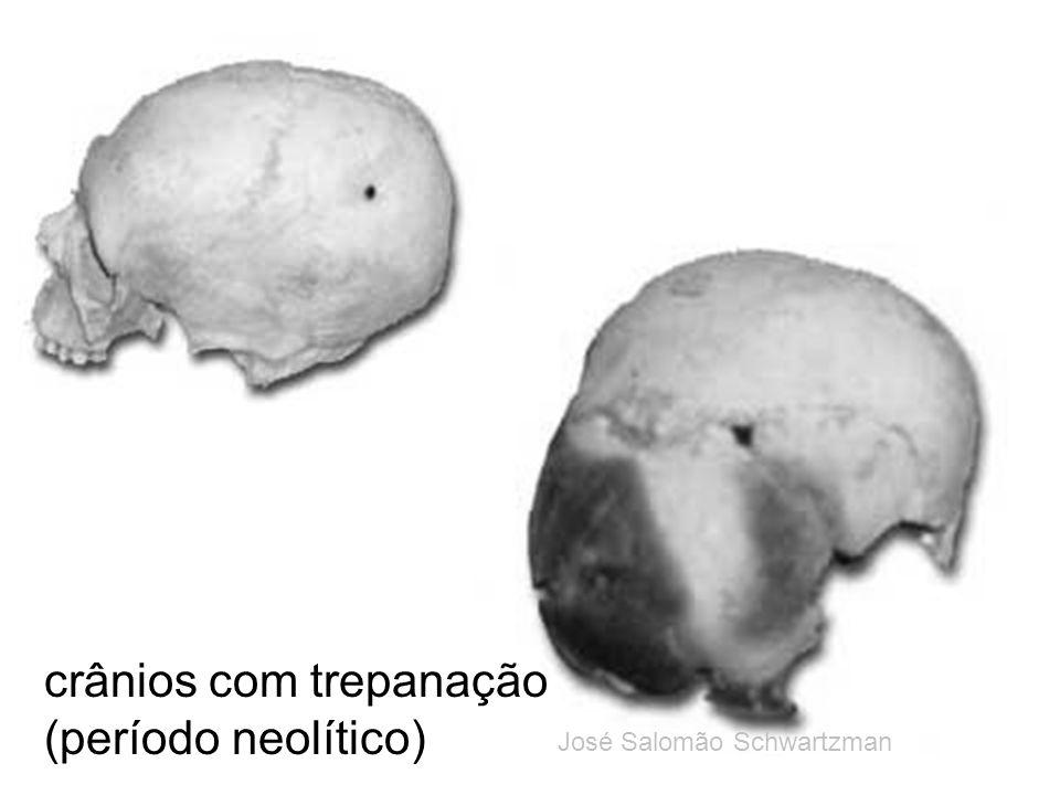 crânios com trepanação (período neolítico) José Salomão Schwartzman