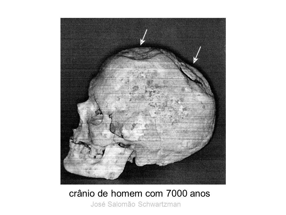 crânio de homem com 7000 anos José Salomão Schwartzman