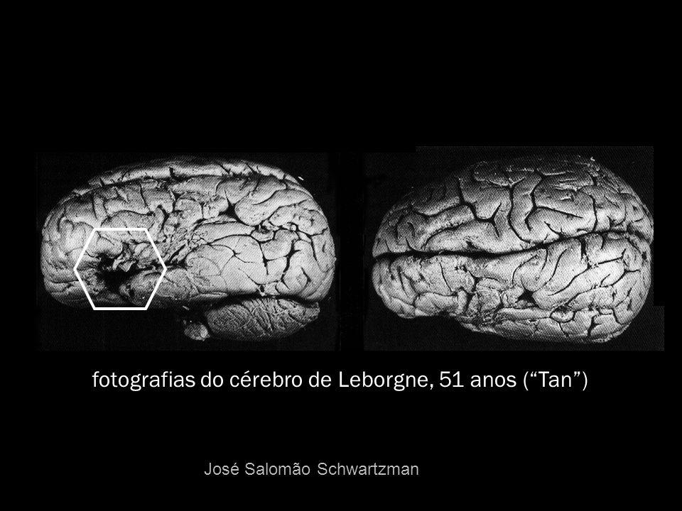 fotografias do cérebro de Leborgne, 51 anos (Tan) José Salomão Schwartzman
